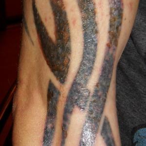 Tydzień Po Zabiegu Usuwania Tatuażu Laserem Fotoblog